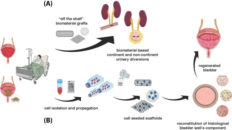 Current and Future Directions of Stem Cell Therapy for Bladder Dysfunction